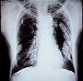 Tabaco y minería causas de obstrucción pulmonar