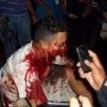 Sangrienta represión y muertes por ley minera
