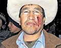 Siete heridos entre ellos el alcalde de Espinar tras enfrentamientos